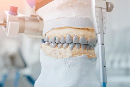 天然歯を削るリスクについて