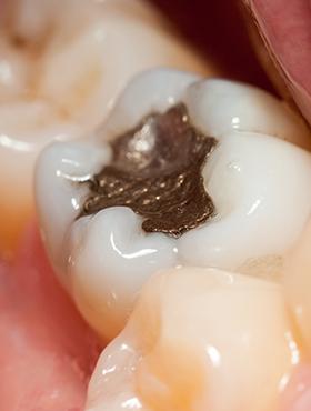 虫歯が再発しやすい