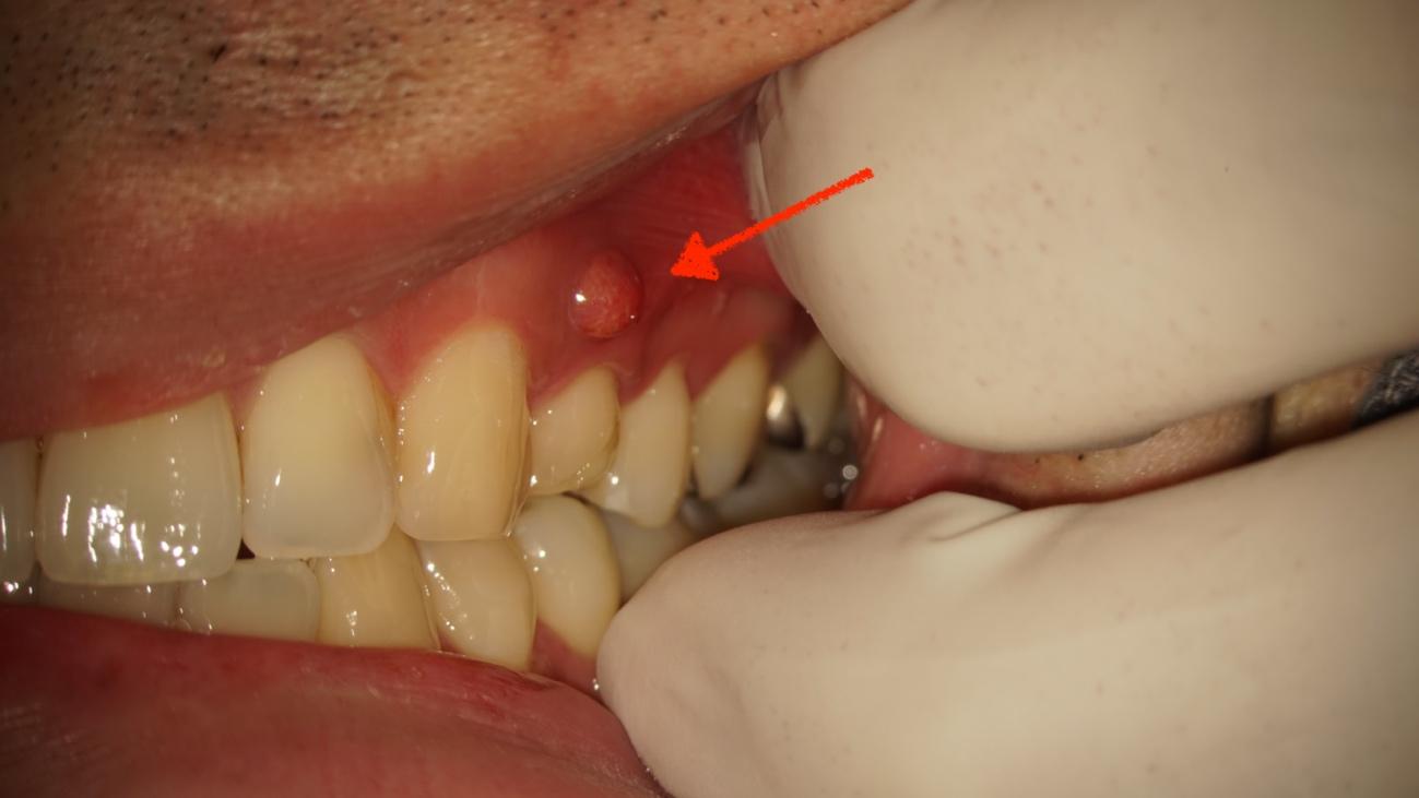 歯茎に瘻孔(ろうこう)というポツリと膨らみが出来た状態