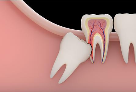 親知らずの抜歯や移植・再植もご相談ください