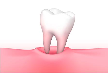 歯の再植について