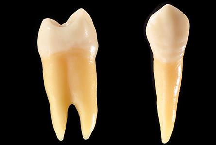 移植・再植した歯を守るために(根管治療)