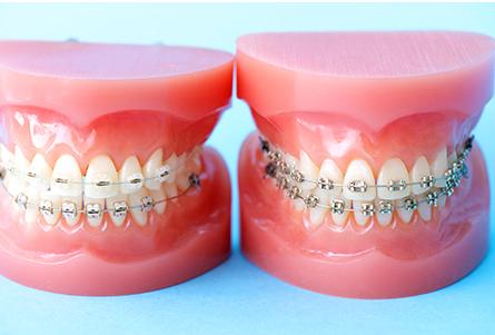 正しい歯並びでより「きれい」「健康的」な笑顔に