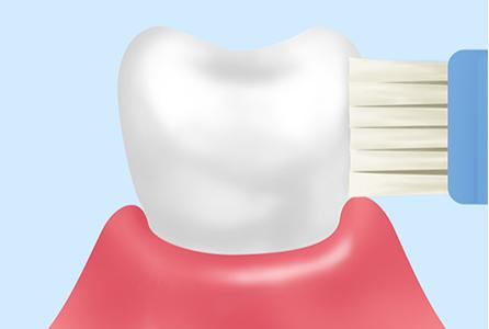 歯みがき指導で正しい「習慣づけ」を