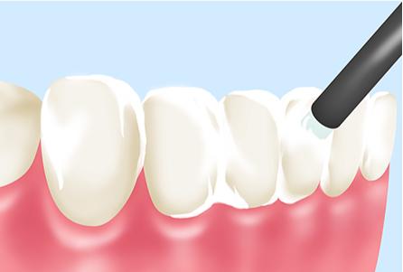 フッ素塗布で虫歯になりにくい歯に