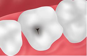 悪影響01永久歯が虫歯になる