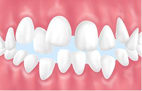 悪影響02歯並びが乱れる