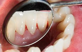 妊娠性歯周炎