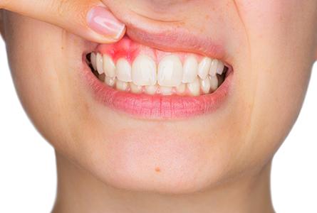 歯周病で「大切な歯」を失わないために