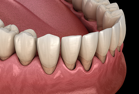 気づかないうちに進行するのが歯周病