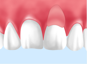 歯肉の再建