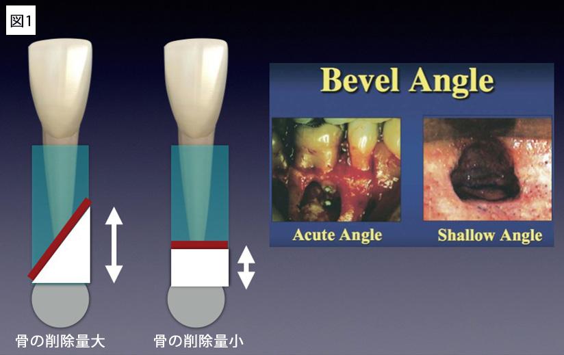 外科的歯内両方の従来法と現在の術式の違い