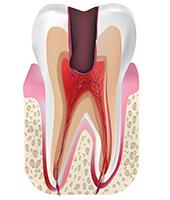 歯髄炎|東京 目白の歯医者 目白マリア歯科
