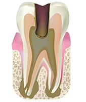 歯髄壊死|東京 目白の歯医者 目白マリア歯科