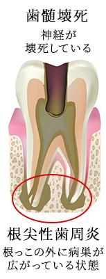 根管治療の成功率を下げる歯髄壊死にまで発展した状態