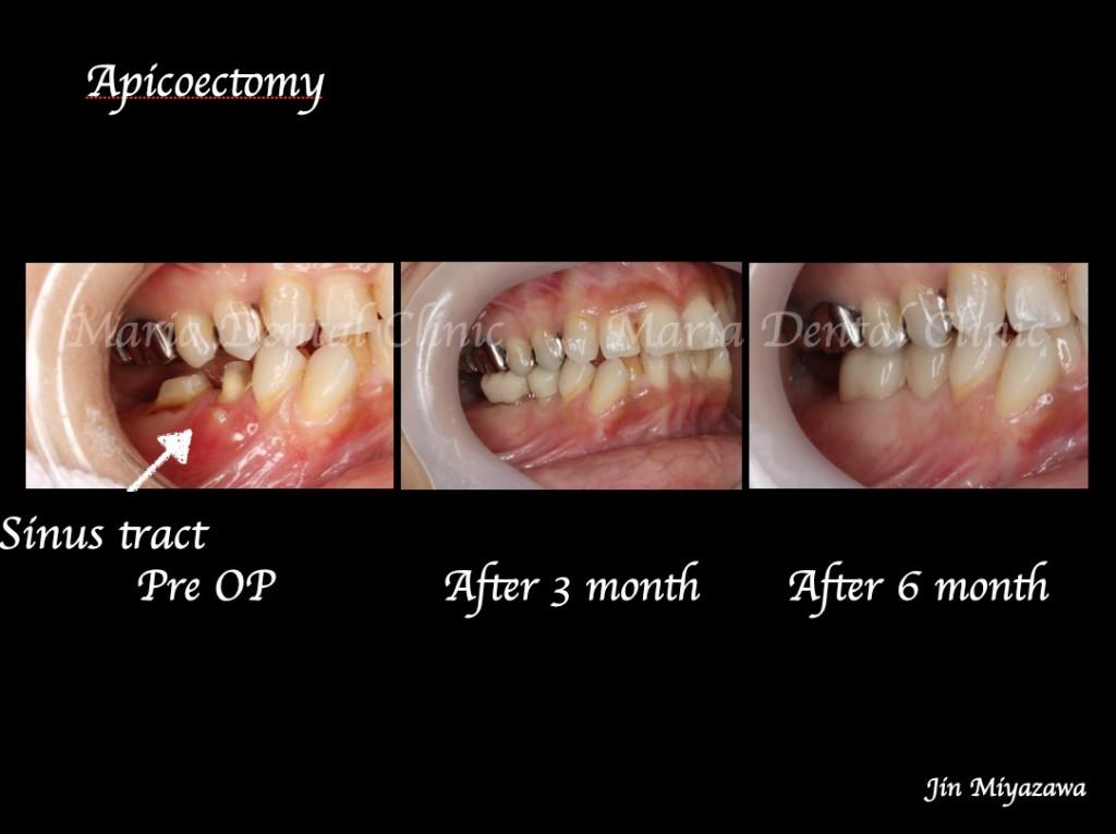 目白マリア歯科【症例】抜歯を宣告された歯を外科的根管治療「歯根端切除術」で保存_術前術後の口腔内写真の比較