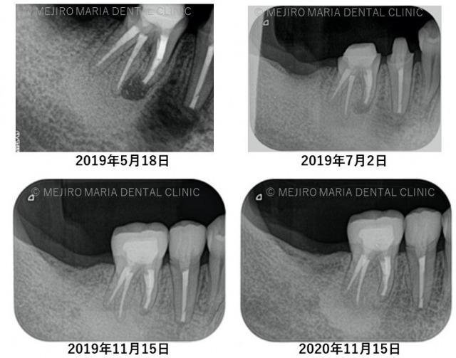 目白マリア歯科_抜歯を宣告された歯を外科的根管治療「歯根端切除術」で保存した症例_1年目経過観察レントゲン画像比較