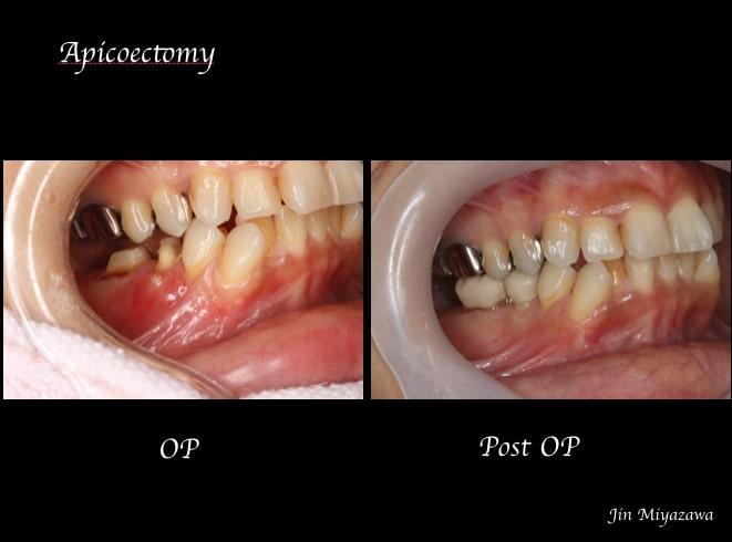 0720症例外科的根管治療「歯根端切除術」Before After