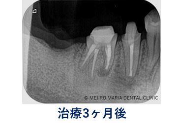 0720症例外科的根管治療「歯根端切除術」治療後3ヶ月のレントゲン写真