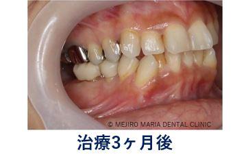 0720症例外科的根管治療「歯根端切除術」治療後3ヶ月の口腔内写真