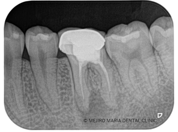 目白マリア歯科【症例】精密根管治療による治療期間の短縮_治療前_治療前のレントゲン画像
