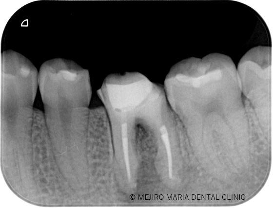 目白マリア歯科【症例】精密根管治療による治療期間の短縮_治療後_治療後のレントゲン画像