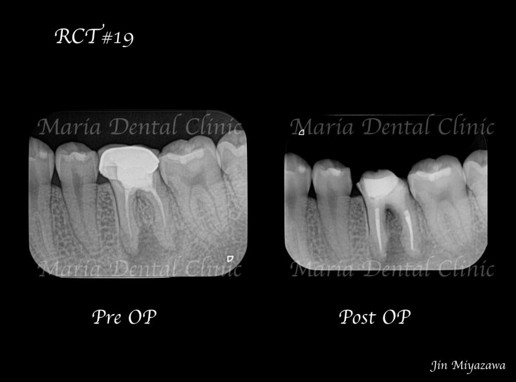 目白マリア歯科【症例】精密根管治療による治療期間の短縮_術前術後の比較レントゲン画像