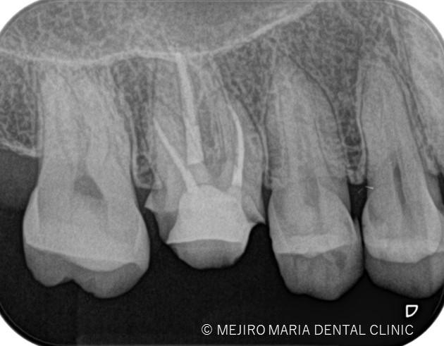 目白マリア歯科【症例】精密根管治療による抜髄処置(初回根管治療)|歯の寿命を左右する初回根管治療_治療後_治療後のレントゲン画像