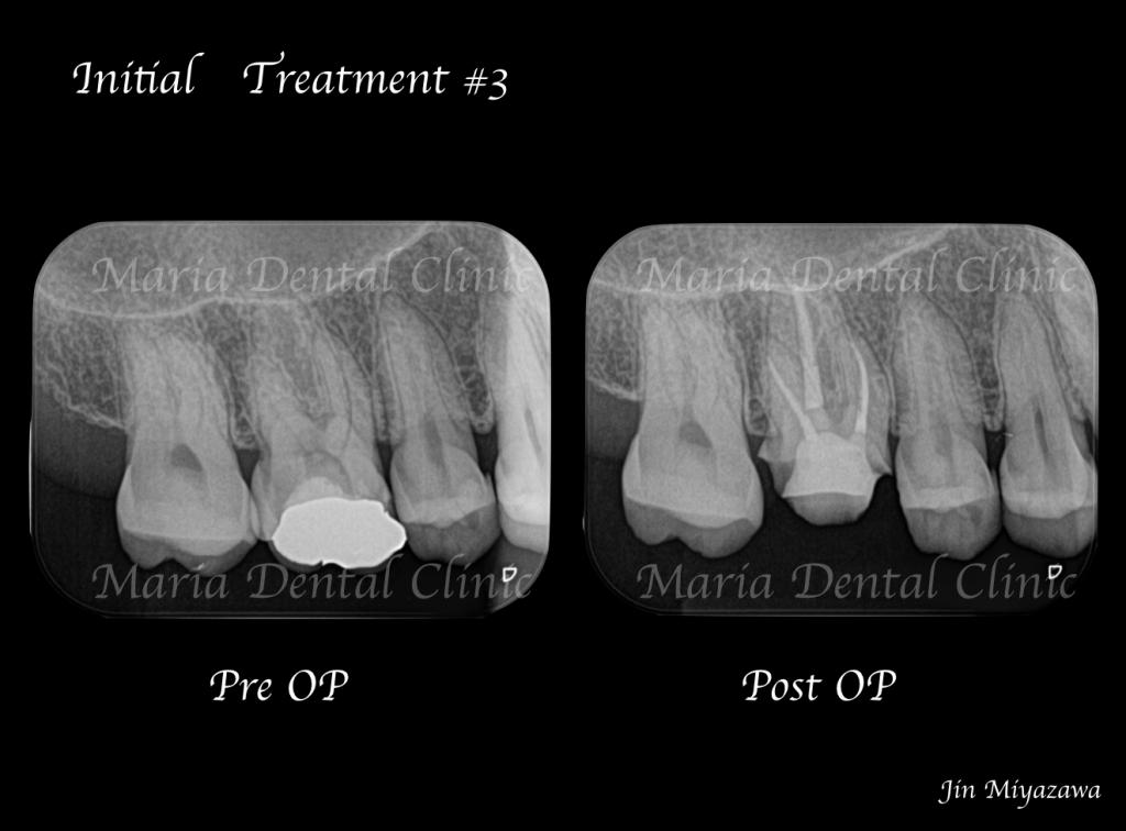 目白マリア歯科【症例】精密根管治療による抜髄処置(初回根管治療)|歯の寿命を左右する初回根管治療_術前術後のレントゲン画像比較