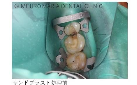 目白マリア歯科セラミック治療後の虫歯の治療中、目白マリア歯科セラミック治療後の虫歯の治療、サンドブラスト処理前