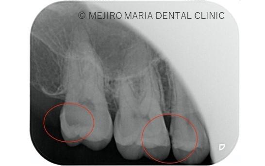 目白マリア歯科【症例】セラミック材料を使った修復処置・セラミック接着時の環境への配慮_治療前_虫歯箇所がわかるレントゲン画像