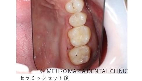 目白マリア歯科【症例】セラミック材料を使った修復処置・セラミック接着時の環境への配慮_治療後_セラミックセット後