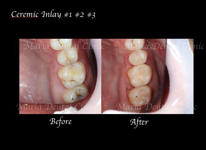 目白マリア歯科【症例】セラミック材料を使った修復処置・セラミック接着時の環境への配慮_術前術後のレントゲン画像比較