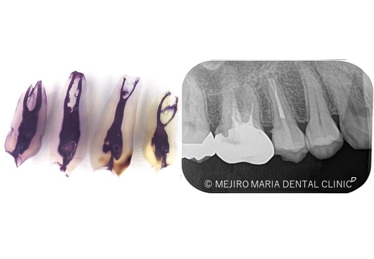 目白マリア歯科【症例】精密根管治療による複雑な根管形態へのアプローチ_メイン_歯の模型とレントゲン画像