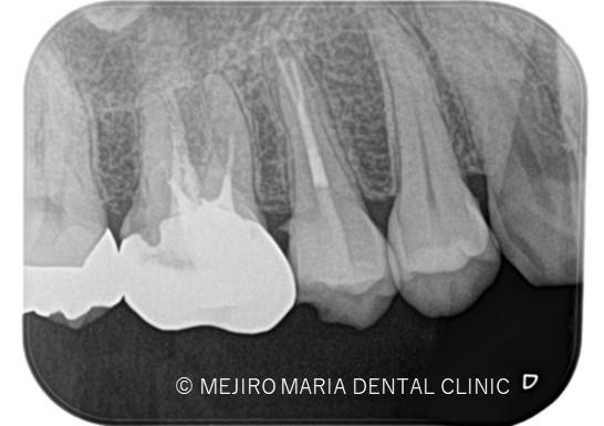 目白マリア歯科【症例】精密根管治療による複雑な根管形態へのアプローチ_治療後_レントゲン画像2