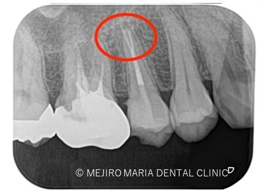 目白マリア歯科【症例】精密根管治療による複雑な根管形態へのアプローチ_治療後_レントゲン画像_目印表示