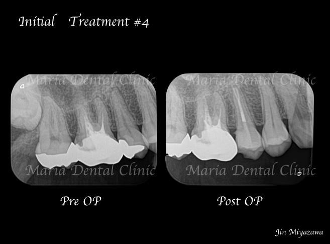 目白マリア歯科【症例】精密根管治療による複雑な根管形態へのアプローチ_術前術後レントゲン画像比較
