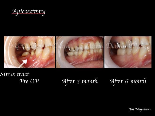 目白マリア歯科歯根端切除術症例画像1-3