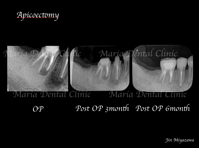 目白マリア歯科歯根端切除術症例画像1-1