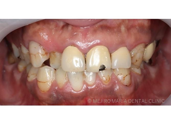 歯科治療補綴物レジンの短所強度が弱く歯がかけた前歯の事例画像