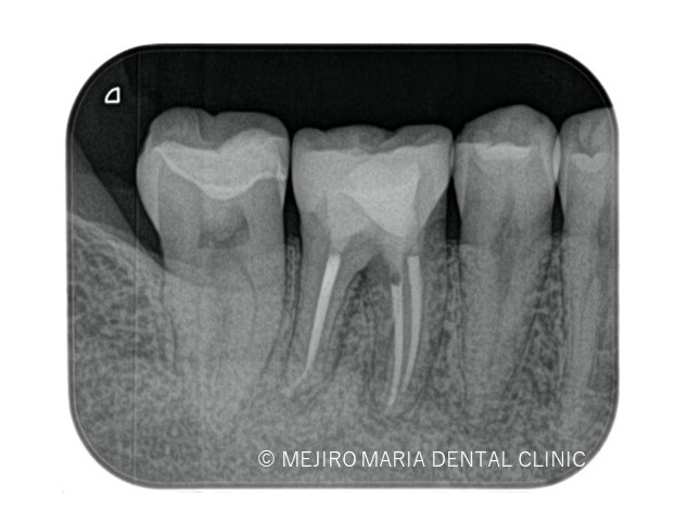 目白マリア歯科の精密根管治療症例術後画像0191116