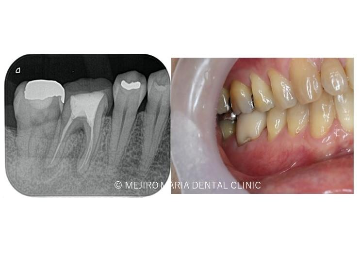 目白マリア歯科【症例】歯根破折を疑わせる症例(治療チャレンジにより抜歯を回避)_メイン_術前レントゲン画像と口腔内写真