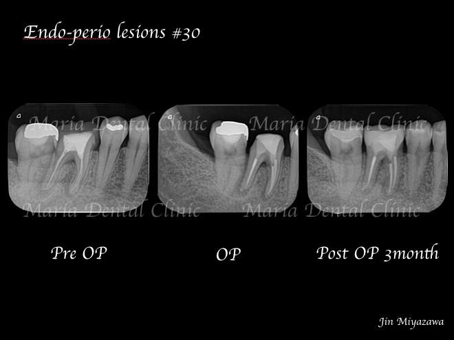 目白マリア歯科【症例】歯根破折を疑わせる症例(治療チャレンジにより抜歯を回避)_レントゲン画像術前術後の比較