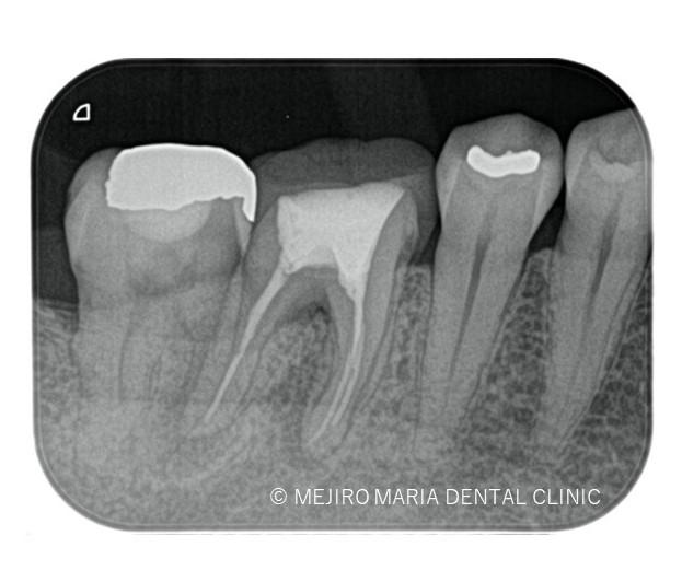 目白マリア歯科【症例】歯根破折を疑わせる症例(治療チャレンジにより抜歯を回避)_治療前_術前レントゲン画像