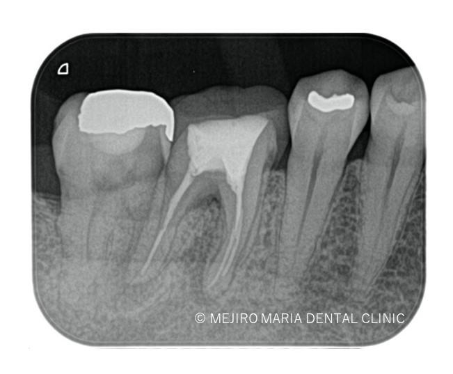 目白マリア歯科【症例】歯根破折を疑わせる症例(治療チャレンジにより抜歯を回避)_治療後_治療後1ヶ月のレントゲン画像