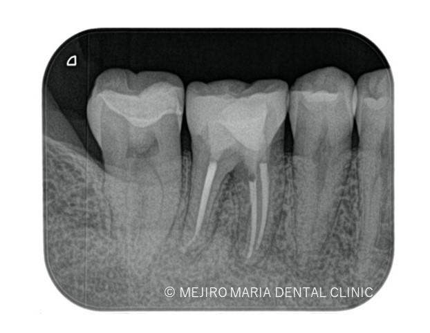 目白マリア歯科【症例】歯根破折を疑わせる症例(治療チャレンジにより抜歯を回避)_治療後_治療後3ヶ月のレントゲン画像