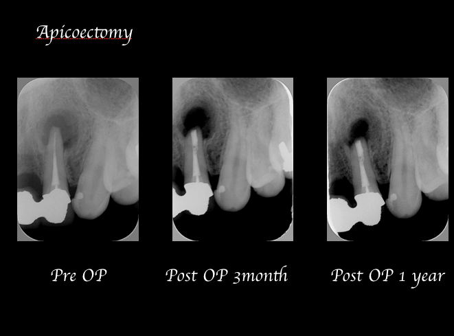目白マリア歯科歯根端切除術症例画像2-1