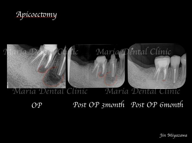 目白マリア歯科歯根端切除術症例画像1-2