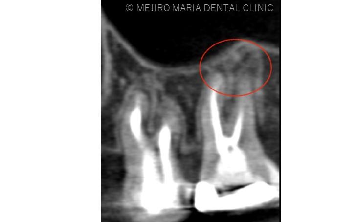 目白マリア歯科【症例】再根管治療| CT、マイクロスコープを使った精密根管治療_治療前_レントゲン画像2