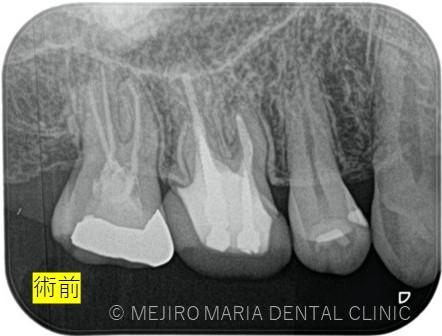 目白マリア歯科【症例】再根管治療| CT、マイクロスコープを使った精密根管治療_治療後_術前のレントゲン画像